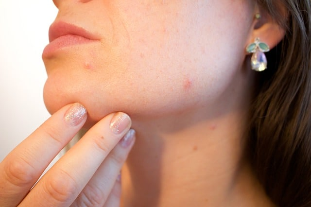 What Microneedling Services Can Do for Your Skin